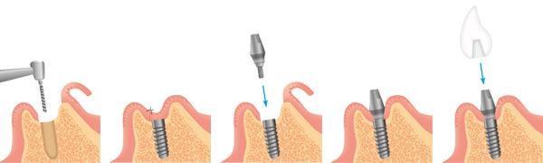 implant_draw