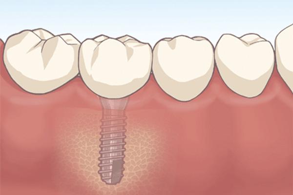 implant_draw1